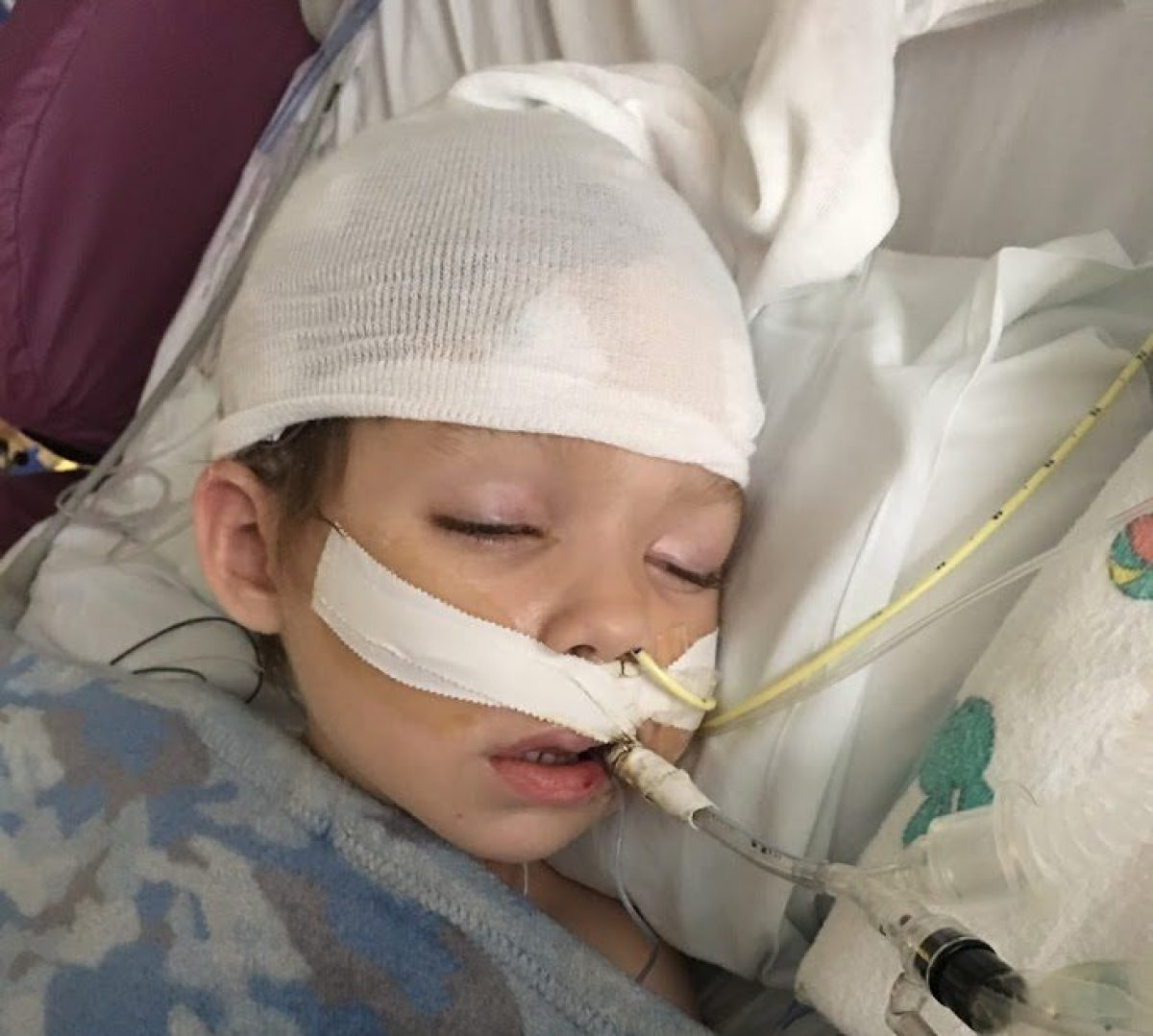When Rare Epilepsy Struck Toddler, Diet Paved Road To Recovery