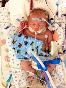 Jude Xenakis was born with severe meconium aspiration and came to Seattle Children's for ECMO.