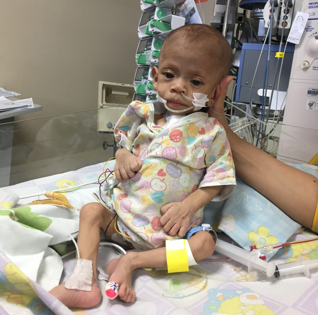 Tiny Hearts, Faster Healing: Seattle and Indonesian ...